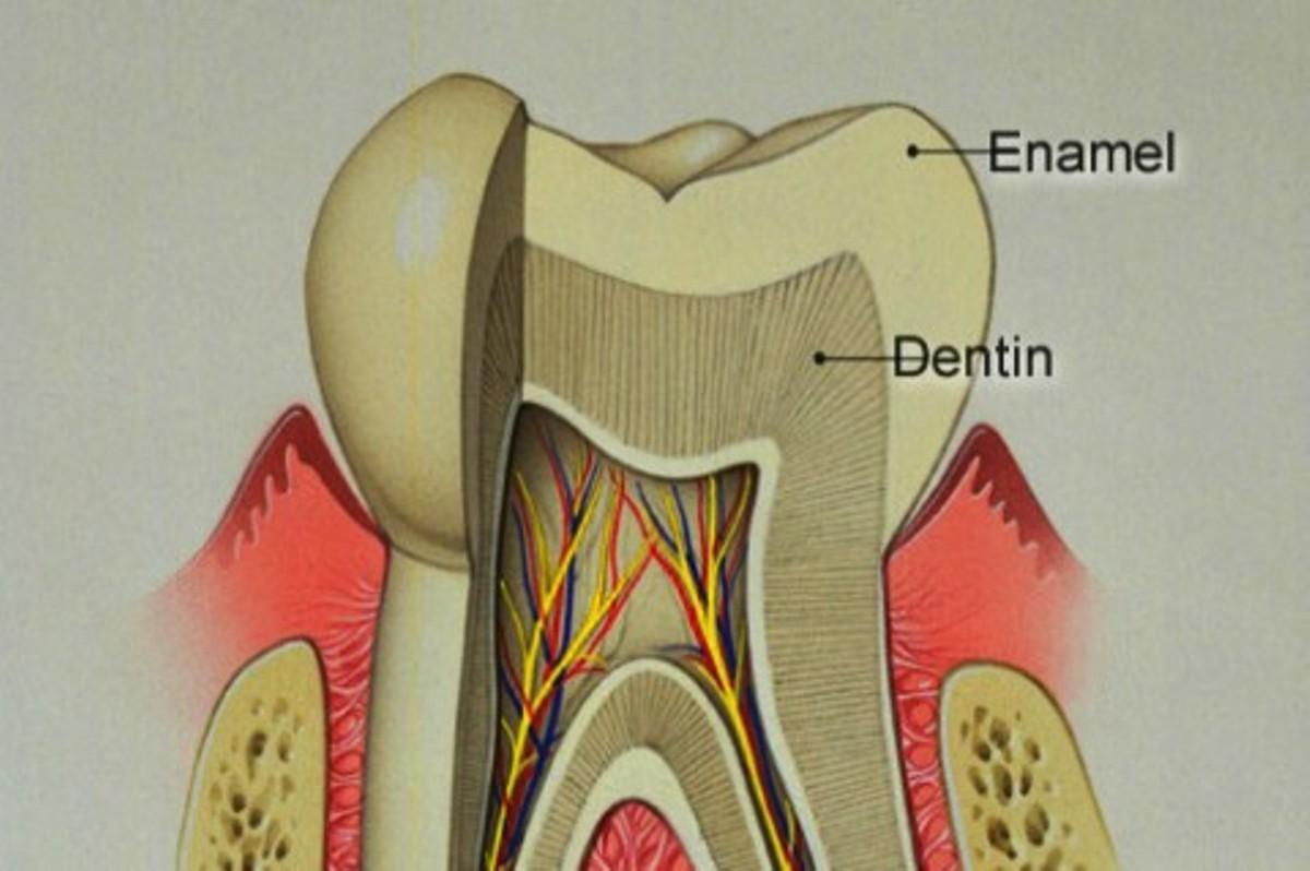C:\Users\Aik Eluigwe\Desktop\Teeth Enamel Damage 1.jpg