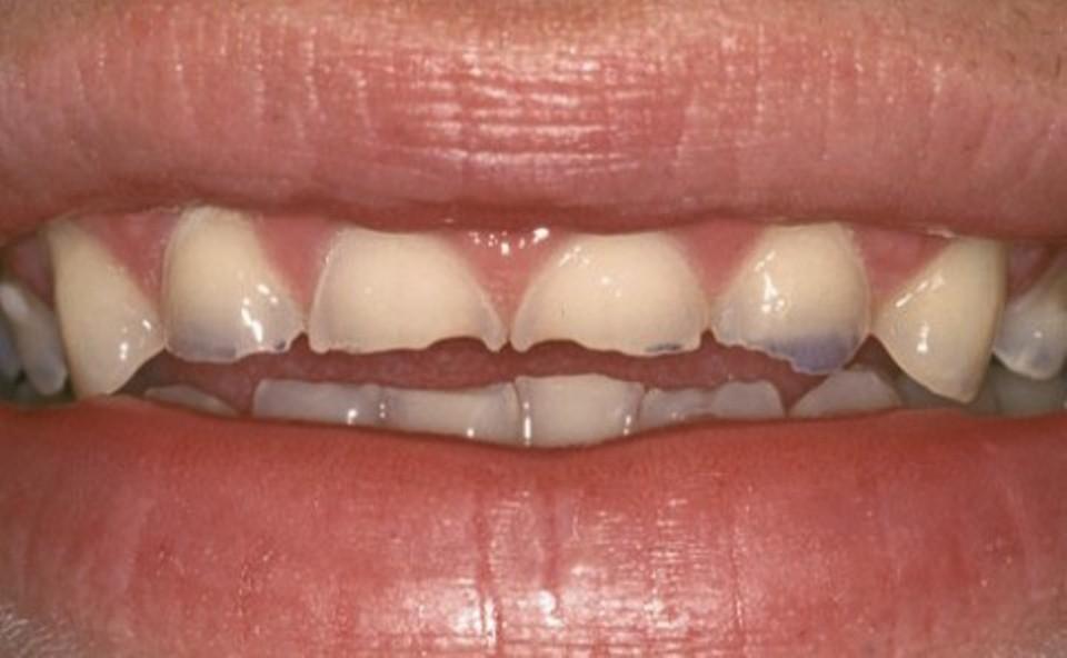 C:\Users\Aik Eluigwe\Desktop\Teeth Enamel Damage.jpg